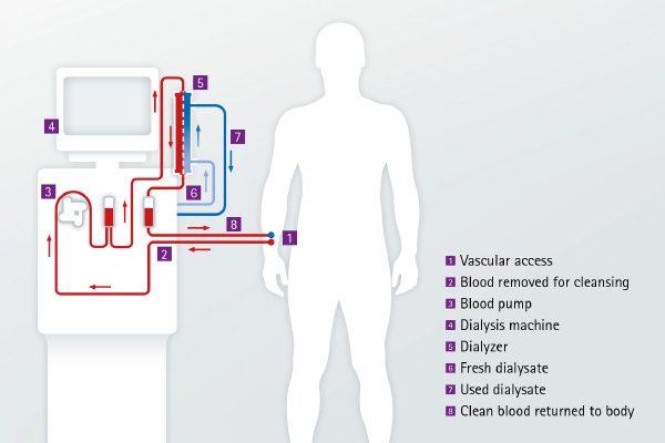 hemodialízis és magas vérnyomás századi magas vérnyomás kezelése