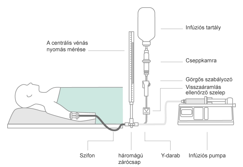 Scheme of a parallel infusion configuration. Combinations of gravity infusion and pump driven infusion in parallel bears the risk of air embolism, when gravity infusion runs dry.